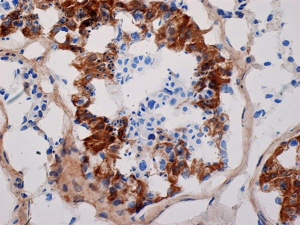 Inhibin Alpha Antibody | R1 gallery image 2