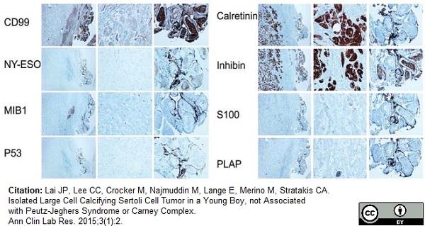 Inhibin Alpha Antibody | R1 thumbnail image 13