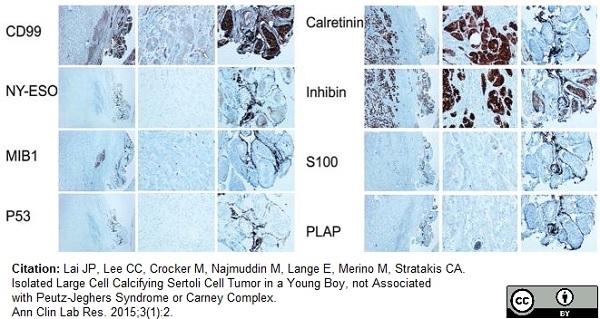 Inhibin Alpha Antibody | R1 gallery image 13