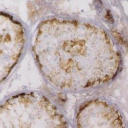 Inhibin Alpha Antibody | R1 gallery image 3
