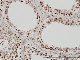 INI-1 Antibody   3E10 gallery image 2