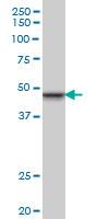 INI-1 Antibody   3E10 gallery image 1