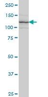 Integrin Alpha 7 Antibody | 8G2 gallery image 1