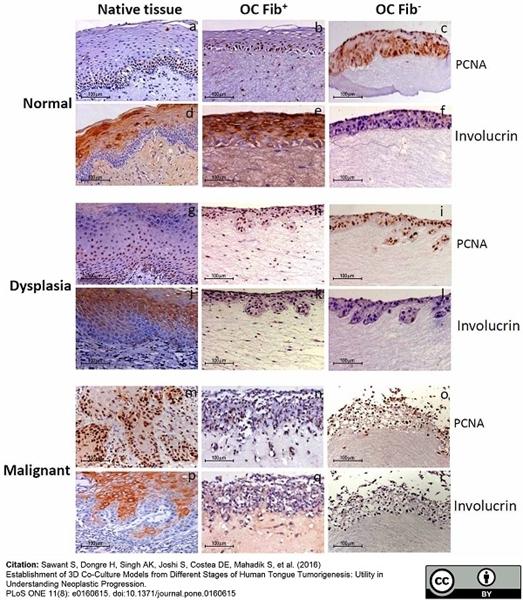 Involucrin Antibody | SY5 gallery image 1