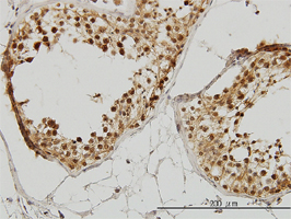 IRAK1 Antibody   3F7 gallery image 2