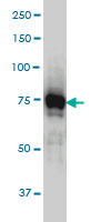 IRAK1 Antibody   3F7 gallery image 1