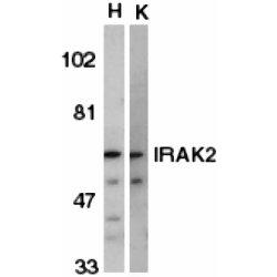 IRAK2 Antibody gallery image 1