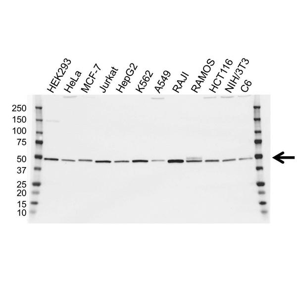 IRF4 Antibody (PrecisionAb<sup>TM</sup> Antibody) gallery image 1
