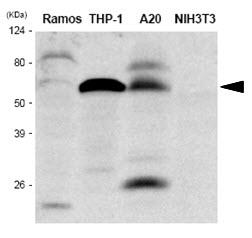 IRF5 Antibody   10T1 gallery image 1
