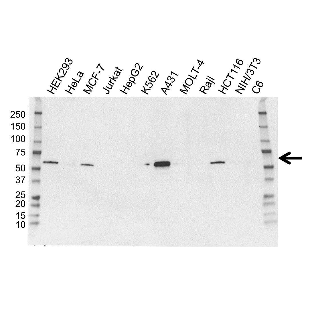 IRF6 Antibody (PrecisionAb<sup>TM</sup> Antibody) | OTI2C10 gallery image 1
