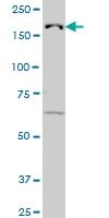 JARID1B Antibody | 1G10 gallery image 2