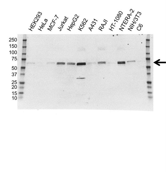KEAP1 Antibody (PrecisionAb<sup>TM</sup> Antibody) | OTI1G2 gallery image 1