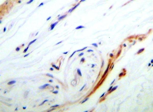 KGF Antibody gallery image 1