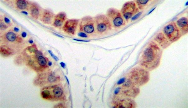 KGF Antibody gallery image 2