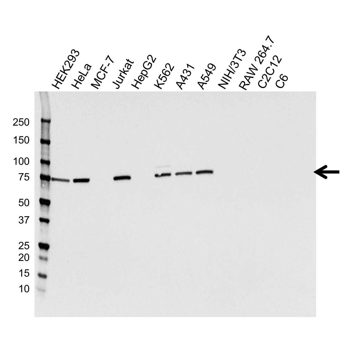 Kinesin Family Member 2C Antibody (PrecisionAb<sup>TM</sup> Antibody) | CPTC20 gallery image 1