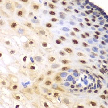 KPNA1 Antibody gallery image 3