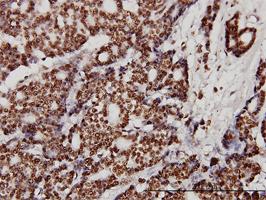 Ku70 Antibody | 4C2-1A6 gallery image 3