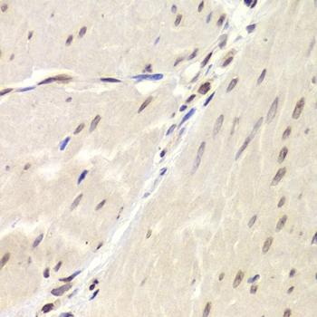 Ku70 Antibody gallery image 6