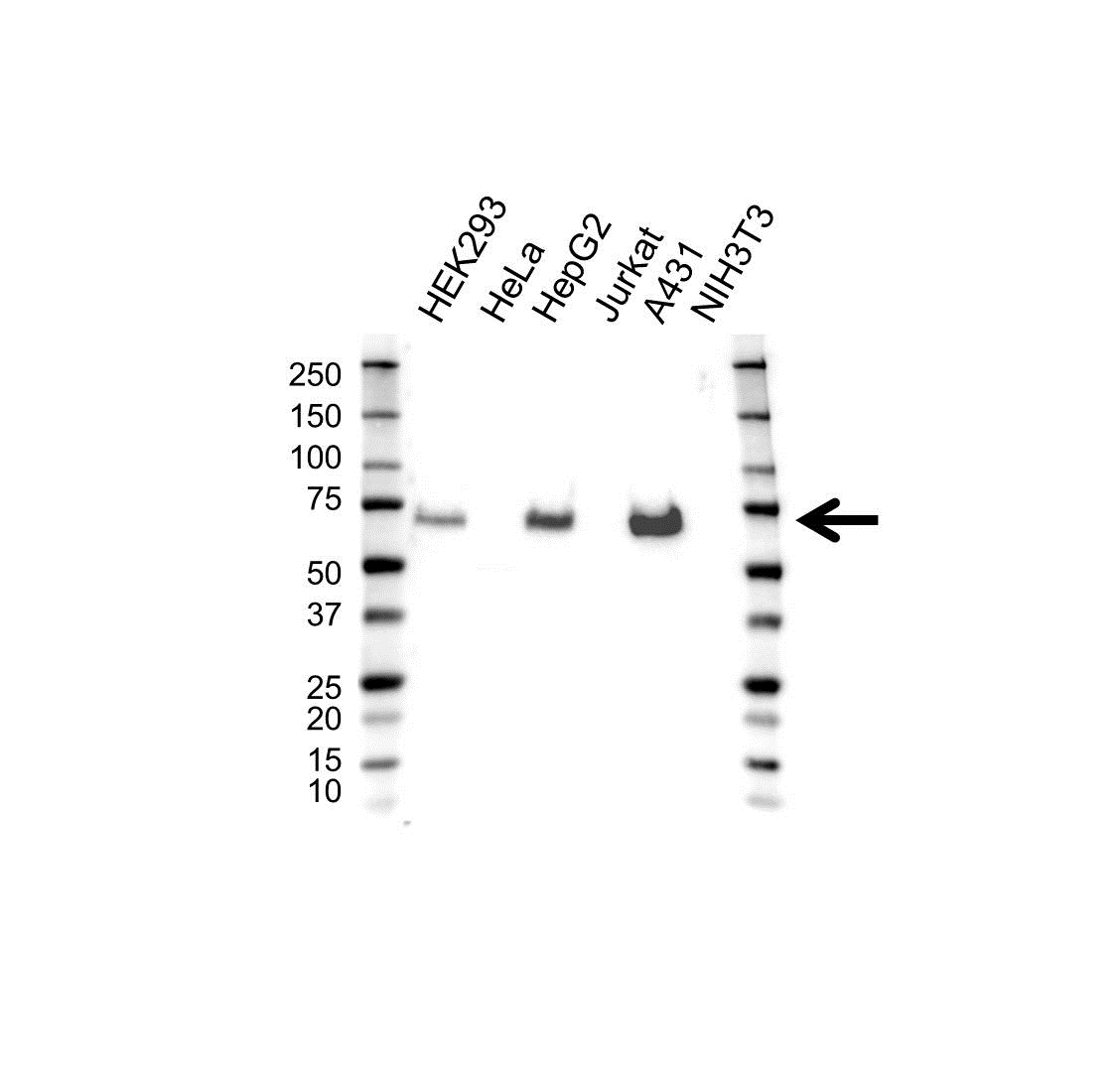 Lamin B Receptor Antibody (PrecisionAb<sup>TM</sup> Antibody) gallery image 1
