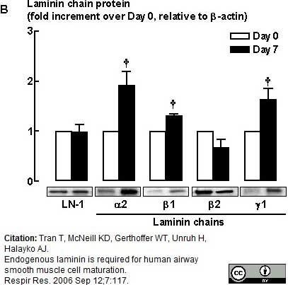 Laminin Antibody | 5H2 gallery image 2