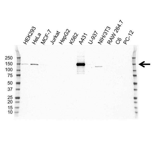 Laminin Beta 3 Antibody (PrecisionAb<sup>TM</sup> Antibody) | OTI3A2 gallery image 1