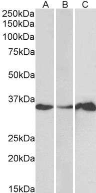 LASP-1 Antibody gallery image 1
