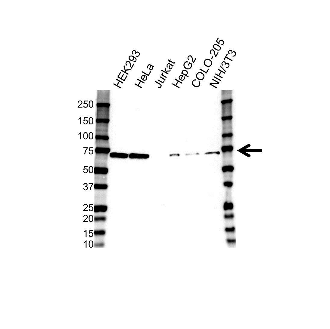 LIMK2 Antibody (PrecisionAb<sup>TM</sup> Antibody) gallery image 1
