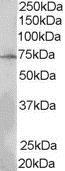 Lnk Antibody gallery image 1
