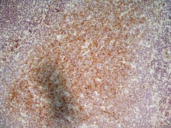 LOX-1 Antibody gallery image 2