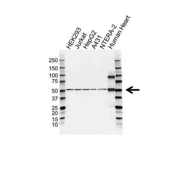 LOXL1 Antibody (PrecisionAb<sup>TM</sup> Antibody) gallery image 1