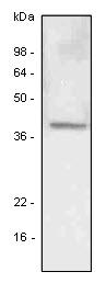 LYVE-1 Antibody | 4G1 gallery image 1