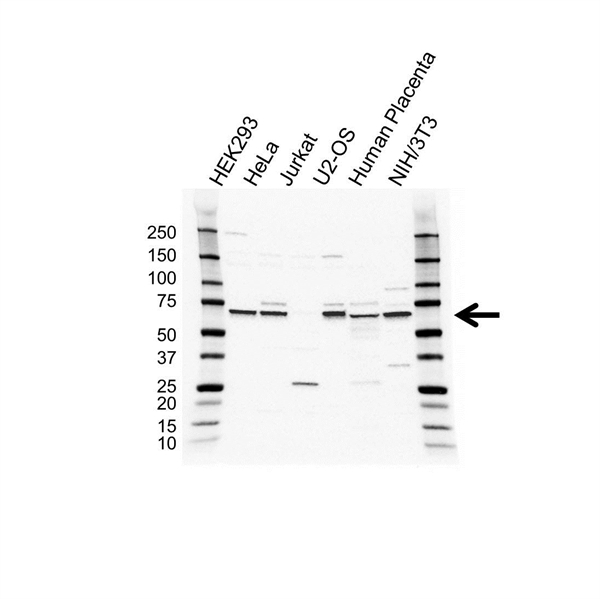 M-CSF Antibody (PrecisionAb<sup>TM</sup> Antibody) gallery image 1