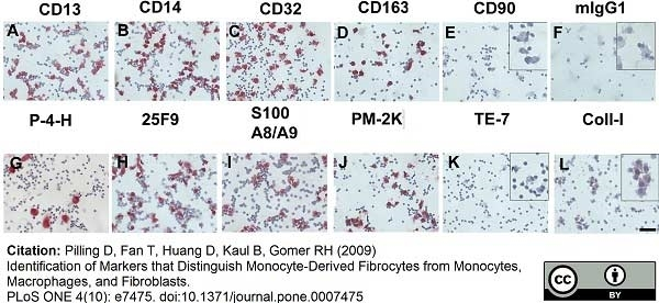 Macrophage Antibody | PM-2K gallery image 1