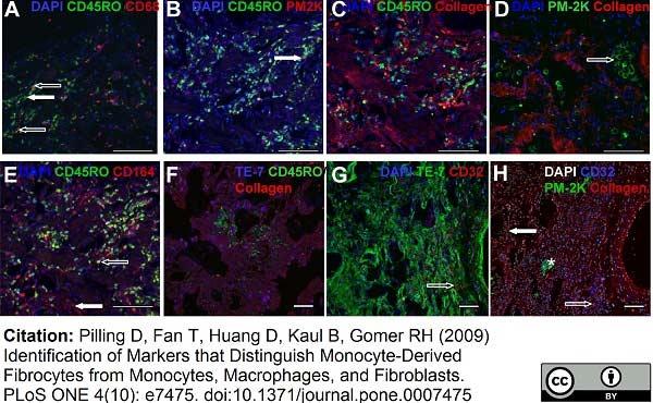Macrophage Antibody | PM-2K gallery image 2