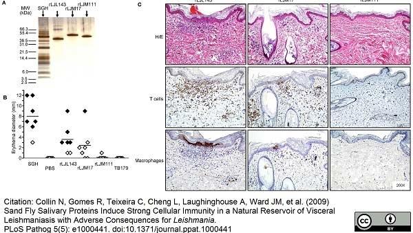 Macrophages/Monocytes Antibody | MAC387 gallery image 7
