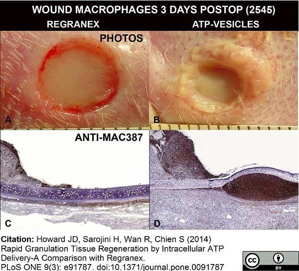 Macrophages/Monocytes Antibody | MAC387 gallery image 12