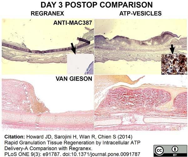 Macrophages/Monocytes Antibody | MAC387 gallery image 13