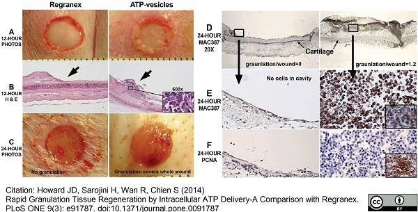 Macrophages/Monocytes Antibody | MAC387 gallery image 11