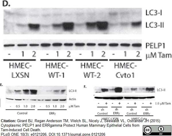MAP1LC3A/B Antibody gallery image 3