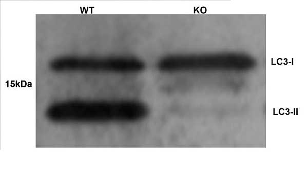 MAP1LC3A/B Antibody gallery image 2