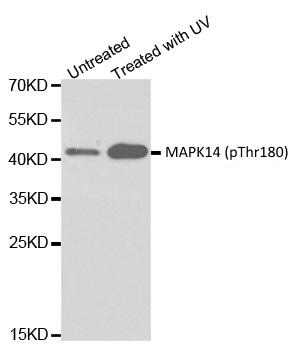 MAPK14 (pThr180) Antibody gallery image 1