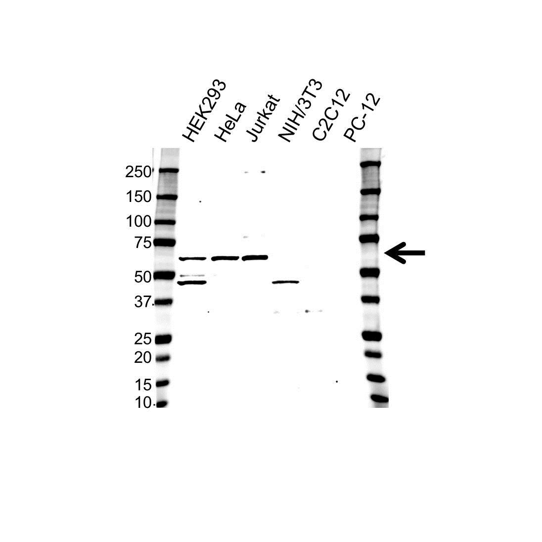 MAPK9 / JNK2 Antibody (PrecisionAb<sup>TM</sup> Antibody) gallery image 1