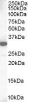 Mcl-1 Antibody gallery image 1