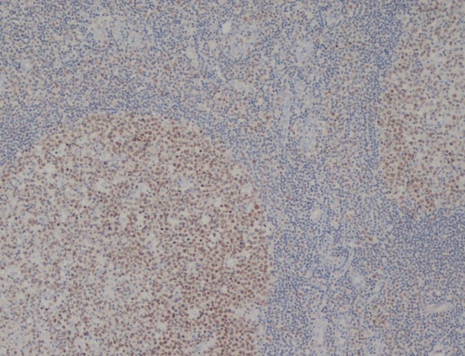 MCM2 Antibody | CRCT2.1 gallery image 1