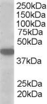 MCT2 Antibody gallery image 1