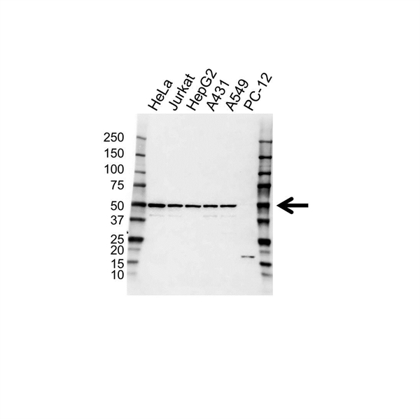 MEK 2 Antibody (PrecisionAb<sup>TM</sup> Antibody) gallery image 1