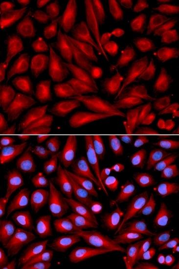 MEK 7 Antibody gallery image 3