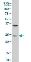 MESP1 Antibody | 1F9 gallery image 1