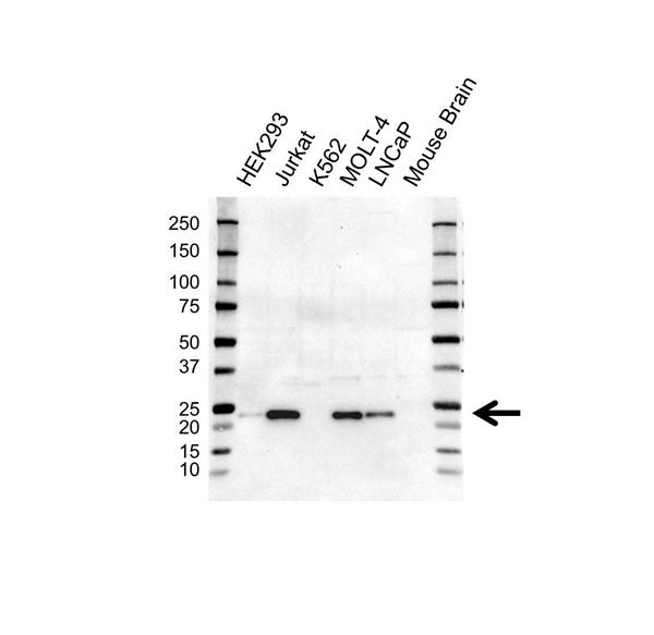 MGMT Antibody (PrecisionAb<sup>TM</sup> Antibody) | UMAB56 gallery image 1