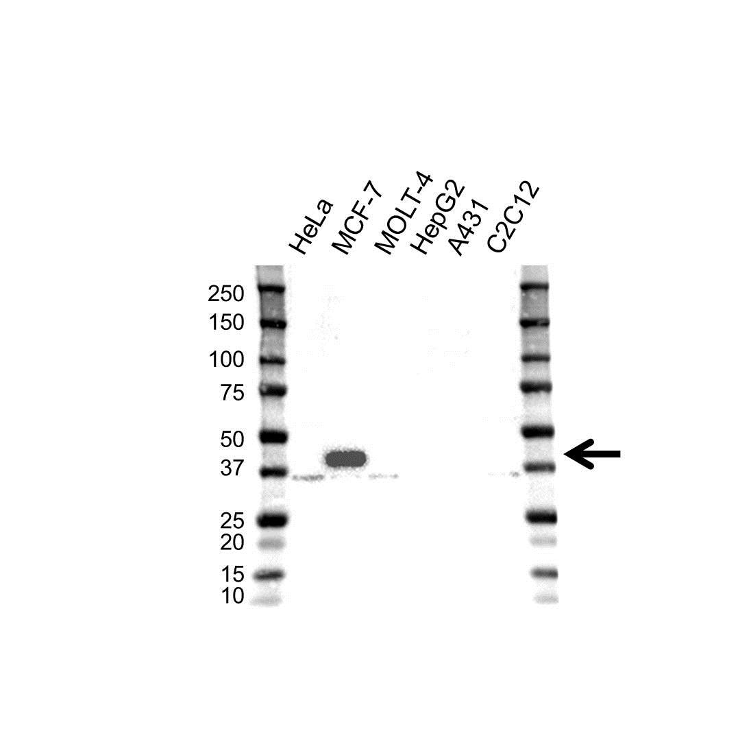 MICA Antibody (PrecisionAb<sup>TM</sup> Antibody) gallery image 1